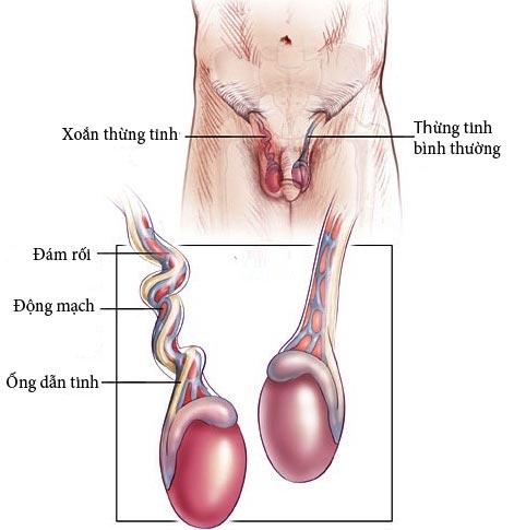 xoắn tinh hoàn gây đau tinh hoàn trái